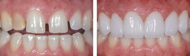 Before and after porcelain veneers Marietta, GA.