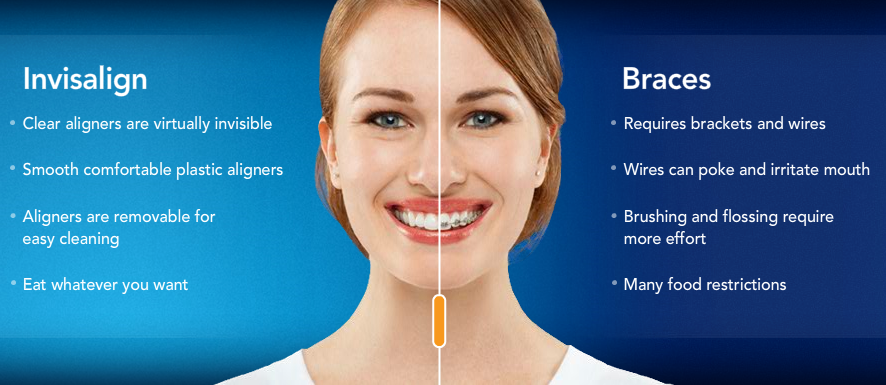 Invisaling vs Traditional Braces pros and cons.