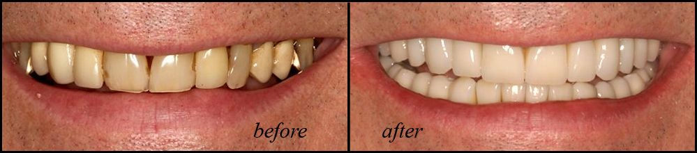 Full mouth reconstruction before and after photo.
