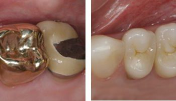 Multiple same day crowns and onlay before and after photo.