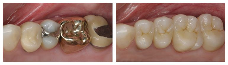 Porcelain crowns before and after photo.