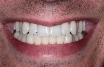 Charles after KoR Whitening