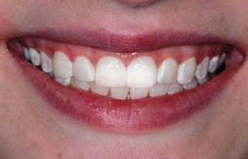 Julia After KoR teeth Whitening