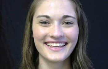Julia before KoR Teeth Whitening