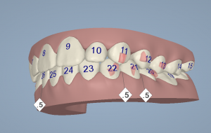 Digital impression - Clincheck for Invisalign.