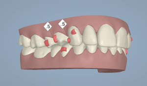 Digital impression for Invisalign.