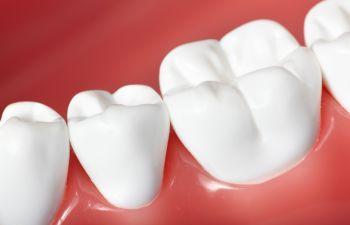 Healthy Teeth Picture Marietta GA