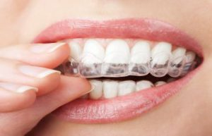 Marietta GA Invisible Braces for Adults and Teens