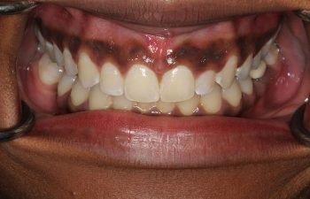 Patient's teeth after Invisalign treatment.
