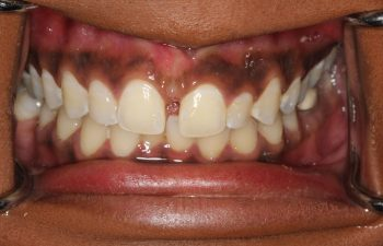 Patient's teeth before Invisalign treatment.