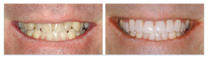 Porcelain veneers before and after photo.
