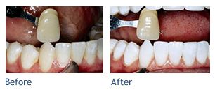 Teeth whitening before and after photo.