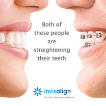 Invisalign vs traditional braces. Both of these people are straightening their teeth.