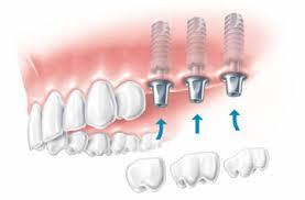 3 dental implants illustration.