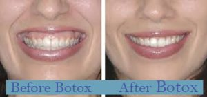 Before and after gummy smile, botox treatment Marietta, GA.