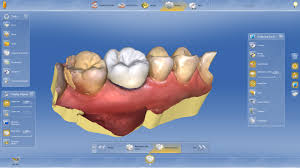CEREC software illustration.