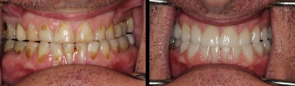 Photo of full mouth before and after same day smile makeovers treatment Marietta, GA.