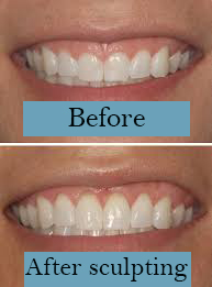 Photos of before and after gum reshaping procedure Marietta, GA.
