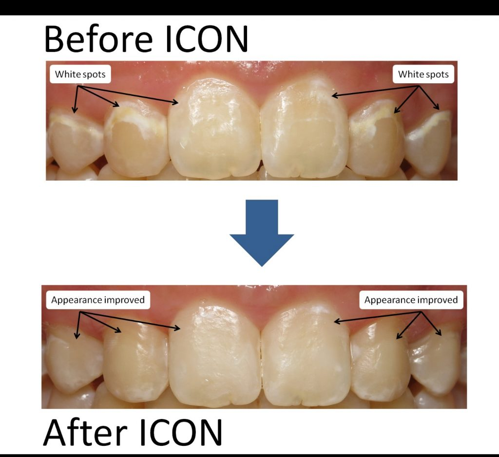Before and after ICON infiltration photos. White spots and appearance improved after ICON.