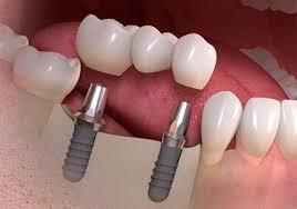 Implant bridge illustration.