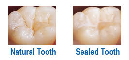 Dental sealants treatment - before and after photos. Natural vs sealed tooth.