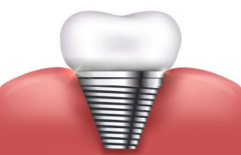 Single Tooth Dental Implant Marietta GA