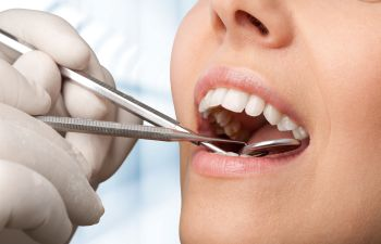 Dental Cleanings Marietta GA