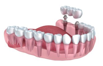 Implants and Bridges Marietta GA