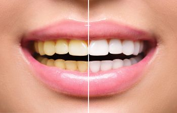 Teeth Whitening Marietta GA